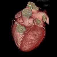 coroscanner - radiologie